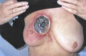 Behandlungsergebnis mit Schwarzer Salbe
