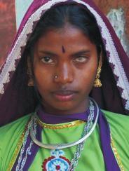 Ein auf einem Auge erblindetes indisches Mädchen